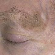 Себорейный кератоз на голове