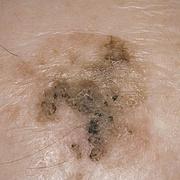 Старческий кератоз кожи