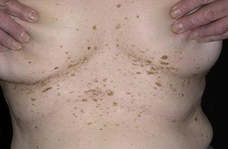 Как выглядит старческий кератоз кожи фото - 639 шт. / nezdorov.com
