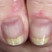 Красный плоский лишай на ногтях
