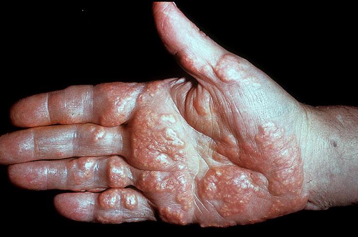 Ксантома при заболеваниях кожи
