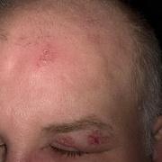 Герпес на голове
