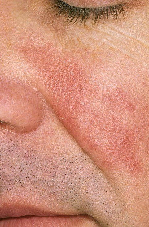 Пиодермия на коже головы