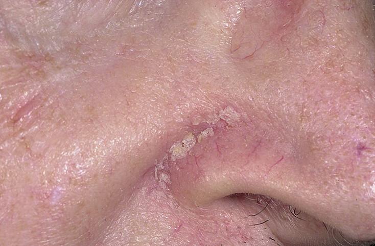 Асд 2 Лечение Псориаза Схема