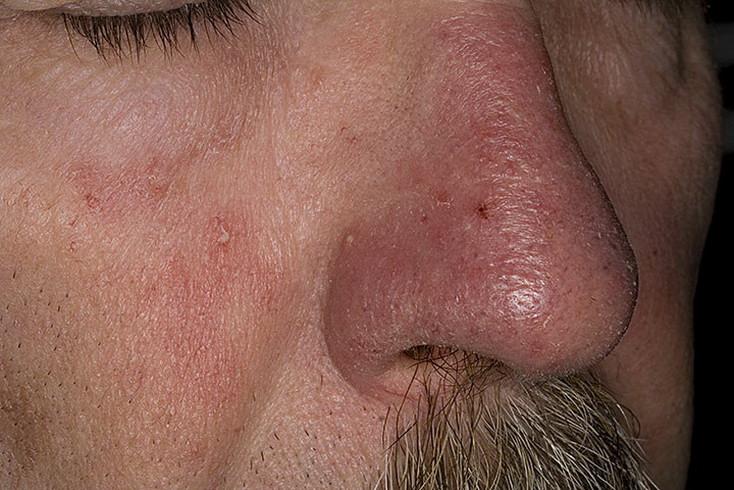 Дерматолог Лечение Псориаза