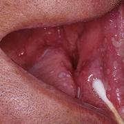 Герпес во рту