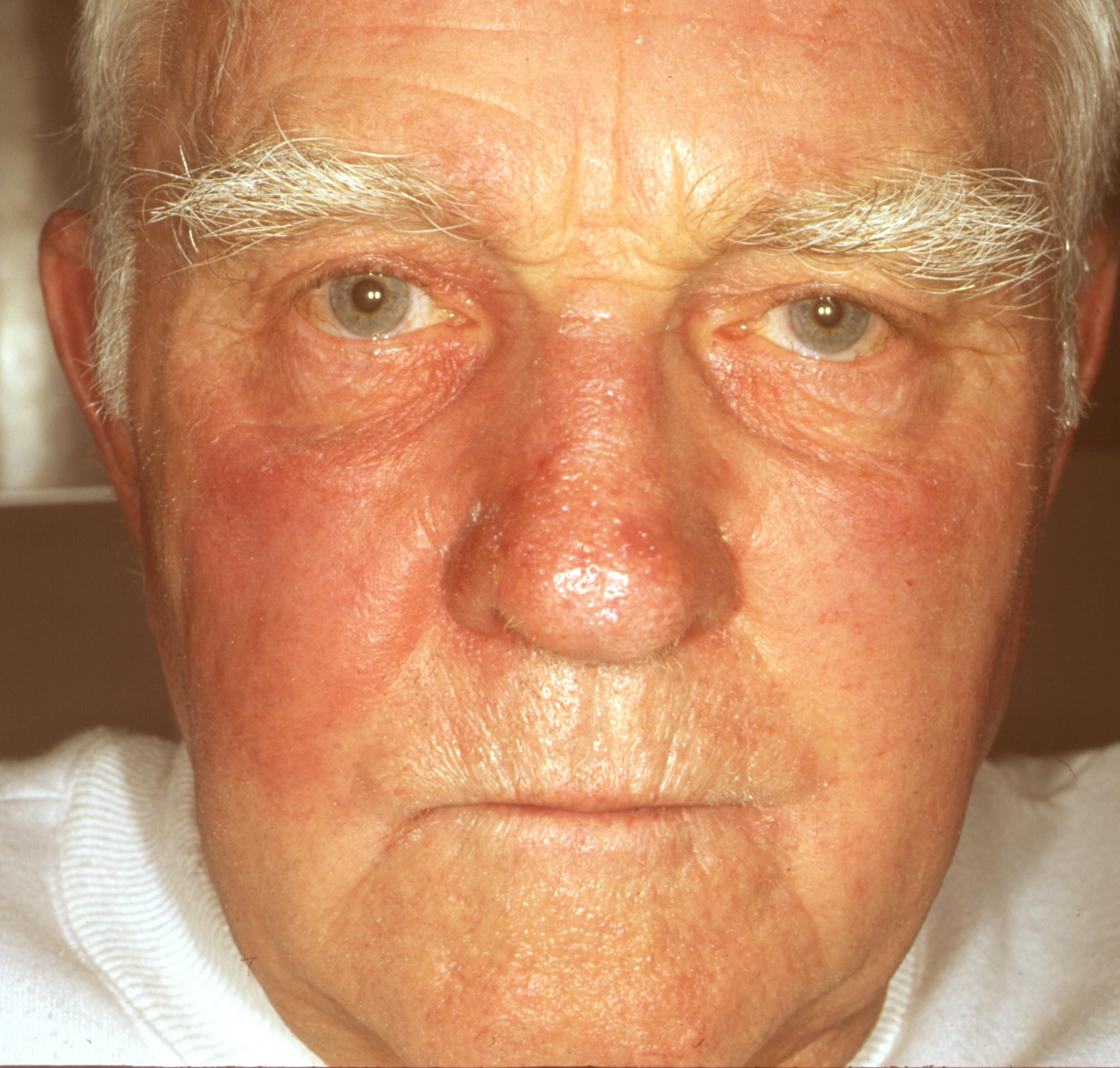 Покраснение кожи лица и пятна на лице 98